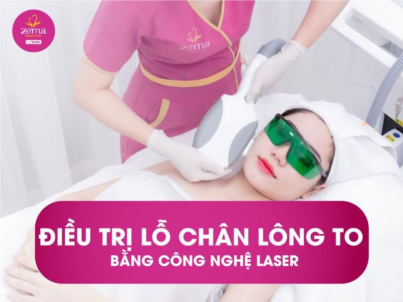 Dịch vụ điều trị lỗ chân lông to bằng công nghệ laser tại Zema Việt Nam