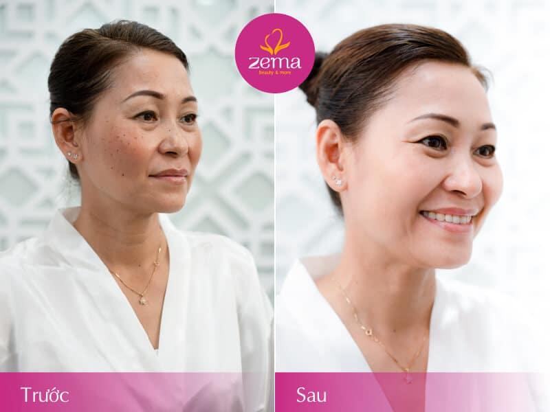 Ảnh khách hàng trước và sau điều trị nám da tại Zema Việt Nam
