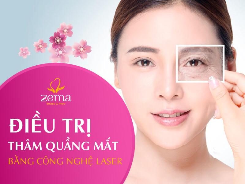Dịch vụ điều trị thâm quầng mặt tại Zema Việt Nam
