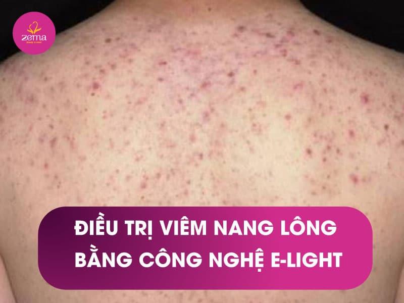 Dịch vụ điều trị viêm nang lông bằng công nghệ E-Light tại Zema Việt Nam