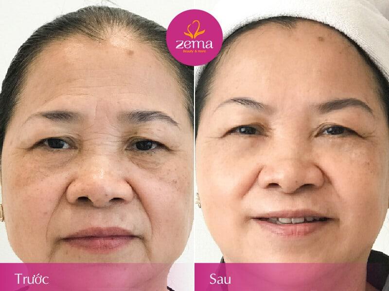 Ảnh khách hàng trước và sau khi thực hiện trẻ hoá da tầng sau
