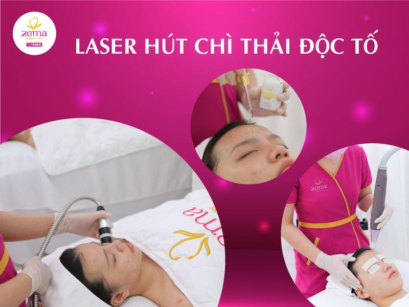 Dịch vụ laser hút chì thải độc tố tại Zema Việt Nam