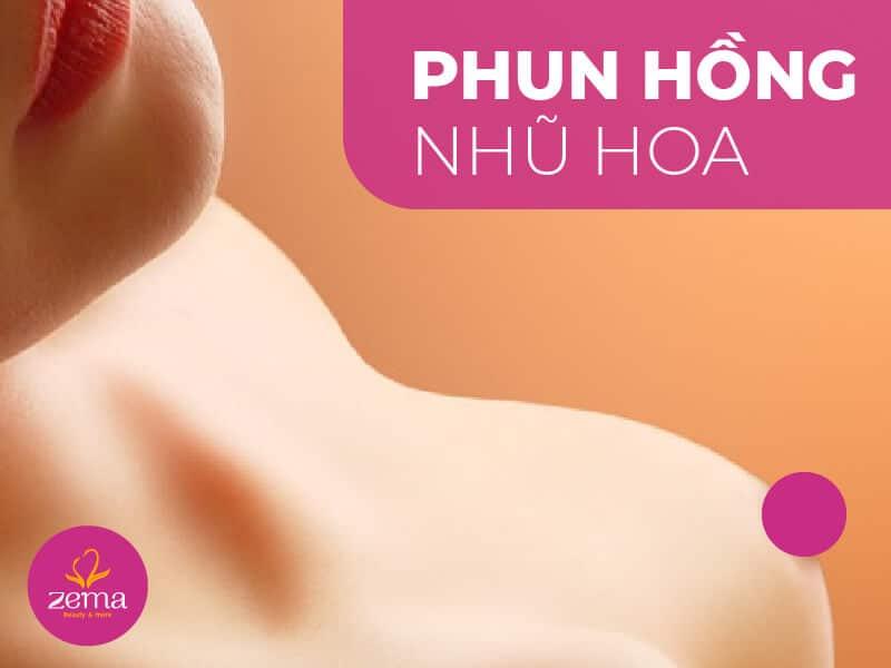 Dịch vụ phun hồng nhũ hoa tại Zema Việt Nam