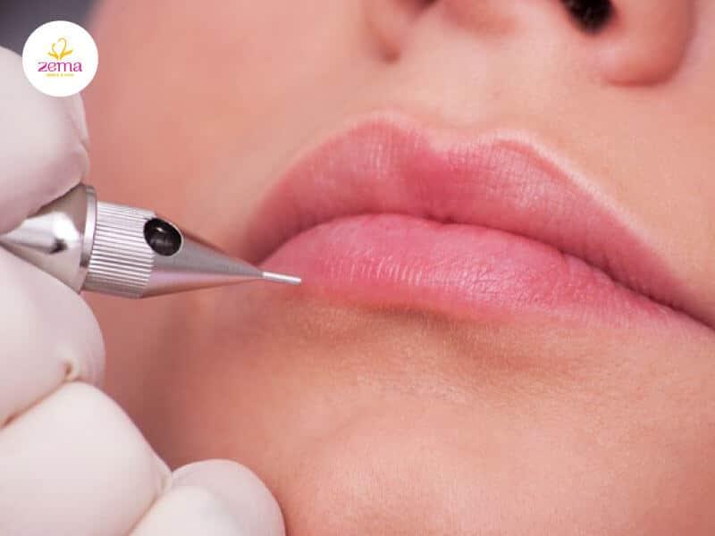Ưu và nhược điểm của phun môi laser