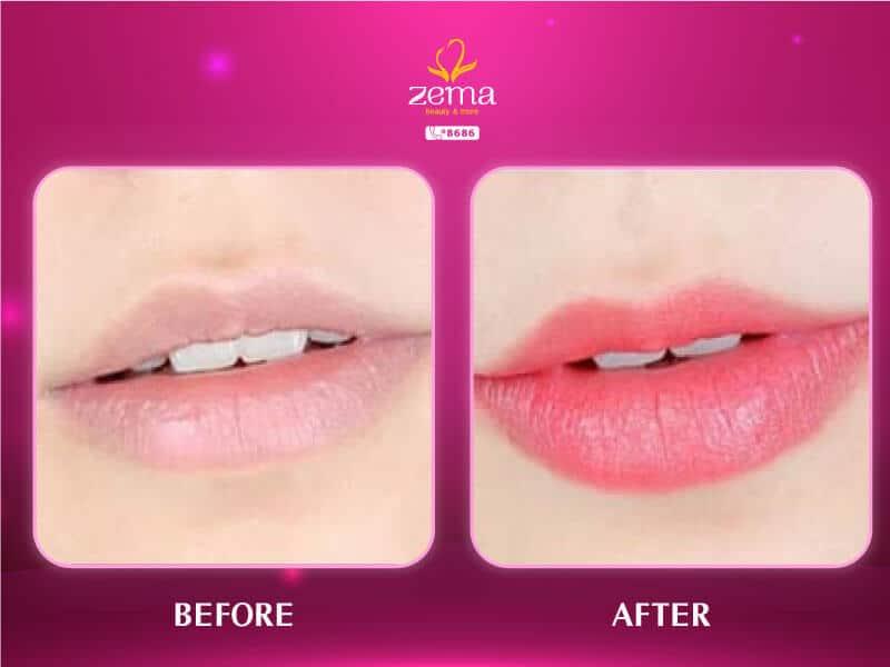 Ảnh khách hàng trước và sau khi Phun Môi collagen tươi