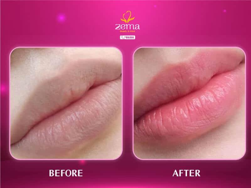 Ảnh khách hàng trước và sau khi phun môi laser tại Zema Việt Nam