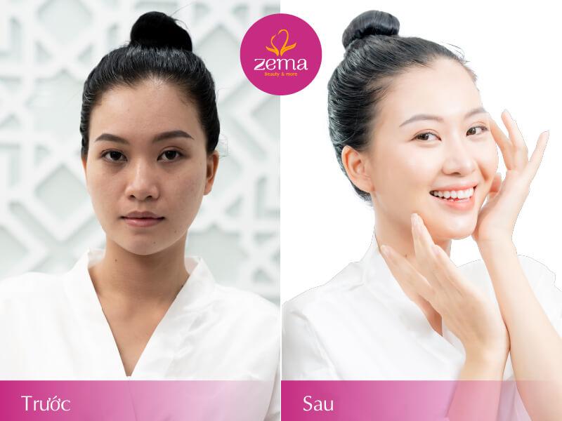 Khách hàng trước và sau khi thực hiện dịch vụ tắm trắng da mặt tại Zema Việt Nam
