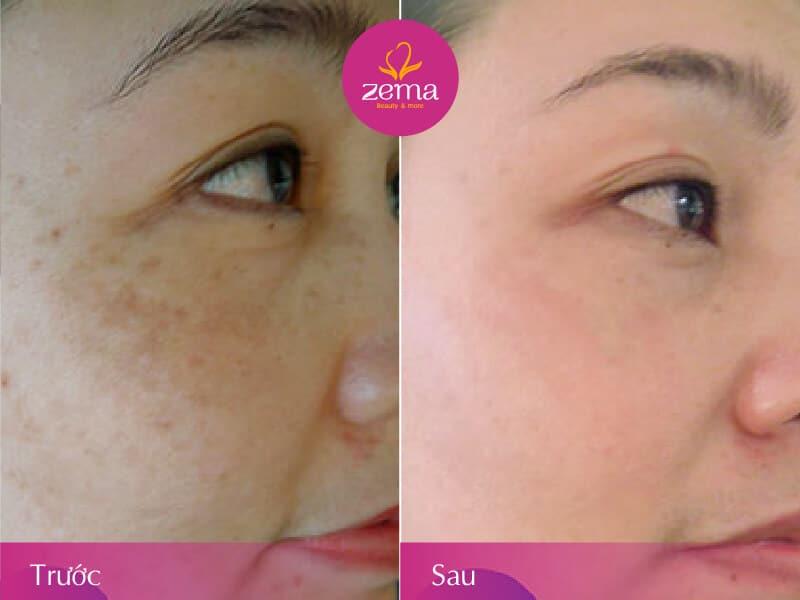 Ảnh khách hàng trước và sau khi thay da sinh học