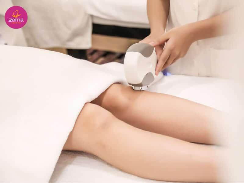 Kỹ thuật triệt lông chân triệt để bằng công nghệ ánh sáng E-Light