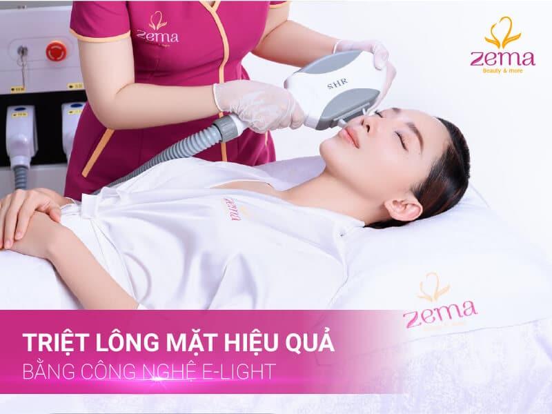 Trải nghiệm ngay dịch vụ triệt lông bằng công nghệ E-Light thế hệ mới tại Zema Việt Nam