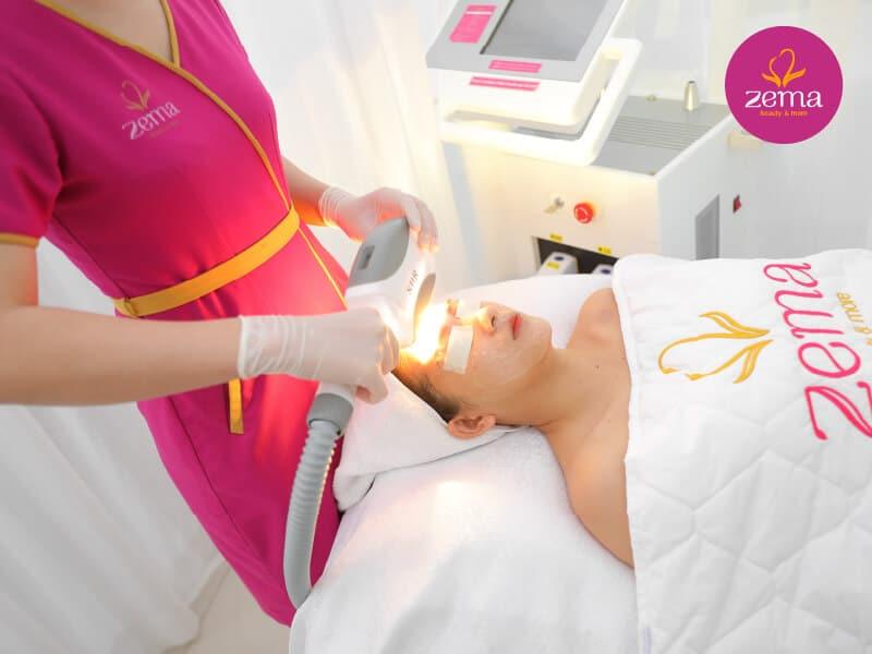 Công nghệ triệt lông E-Light mang đến hiệu quả triệt lông mày toàn diện