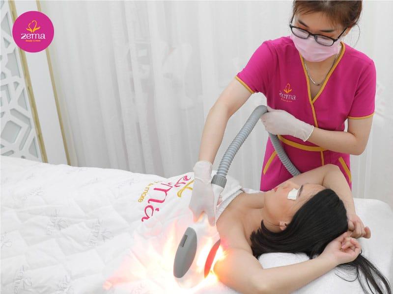 Triệt lông nách bằng công nghệ ánh sáng E-Light tại Zema Việt Nam
