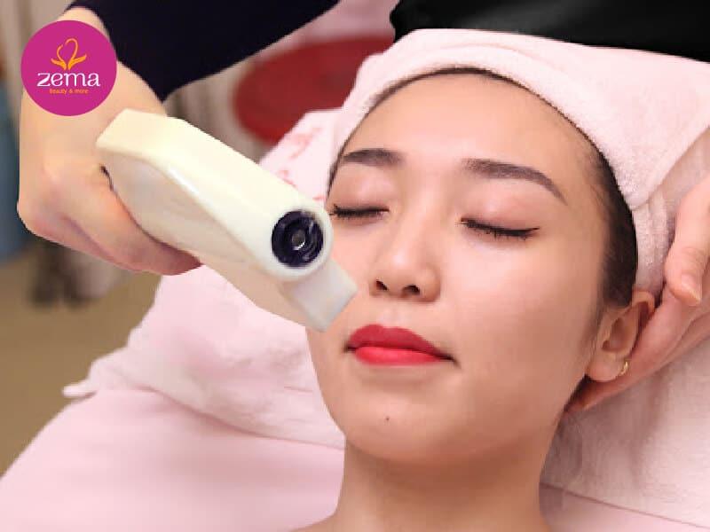 Phương pháp triệt râu quai nón bằng công nghệ E-Light tại Zema Việt Nam