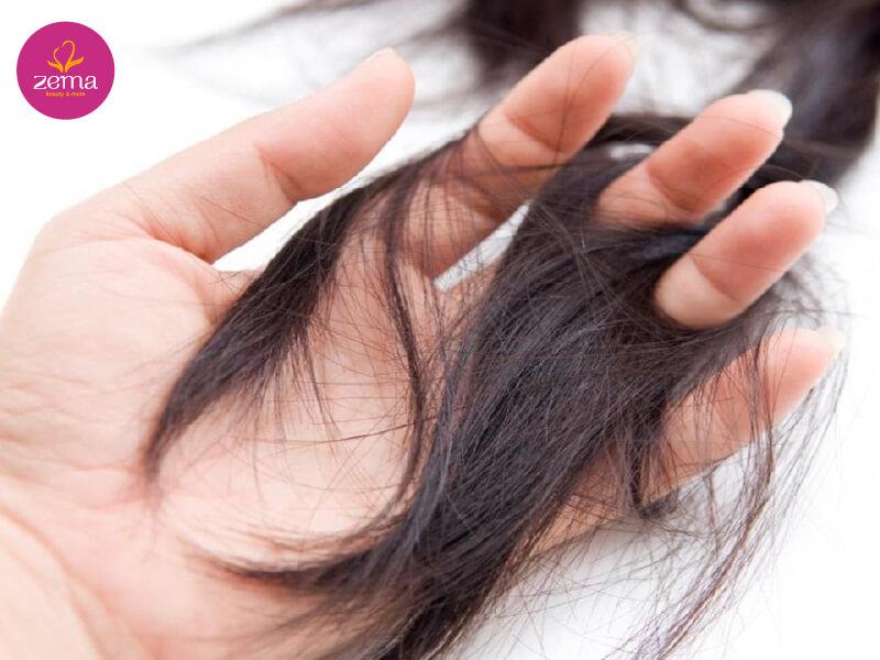 Những biểu hiện làm rụng tóc