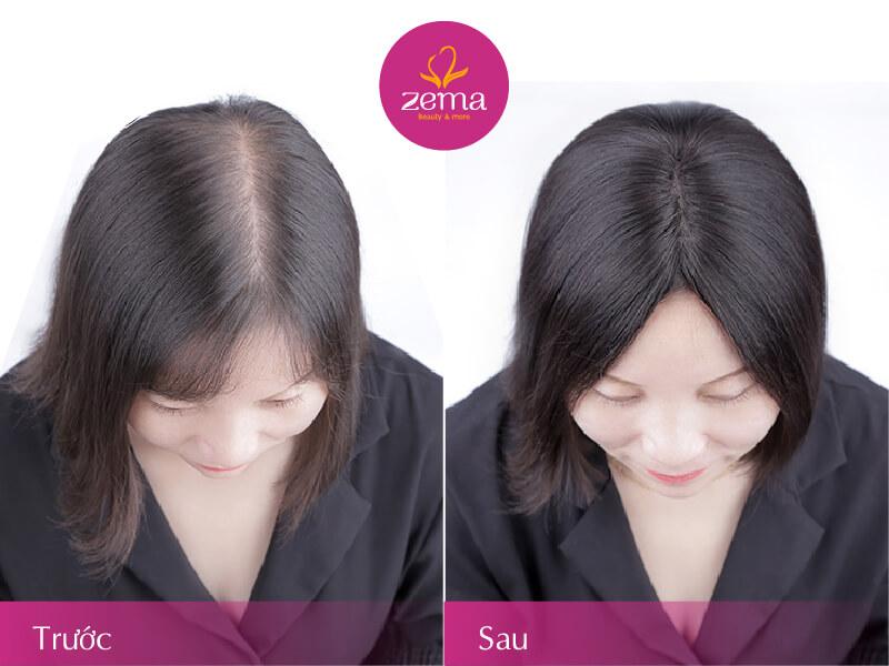 Ảnh khách hàng trước và sau khi điều trị rụng tóc