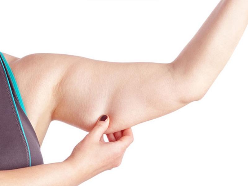 Bắp tay to là một trong những vấn đề thường gặp ở nhiều chị em