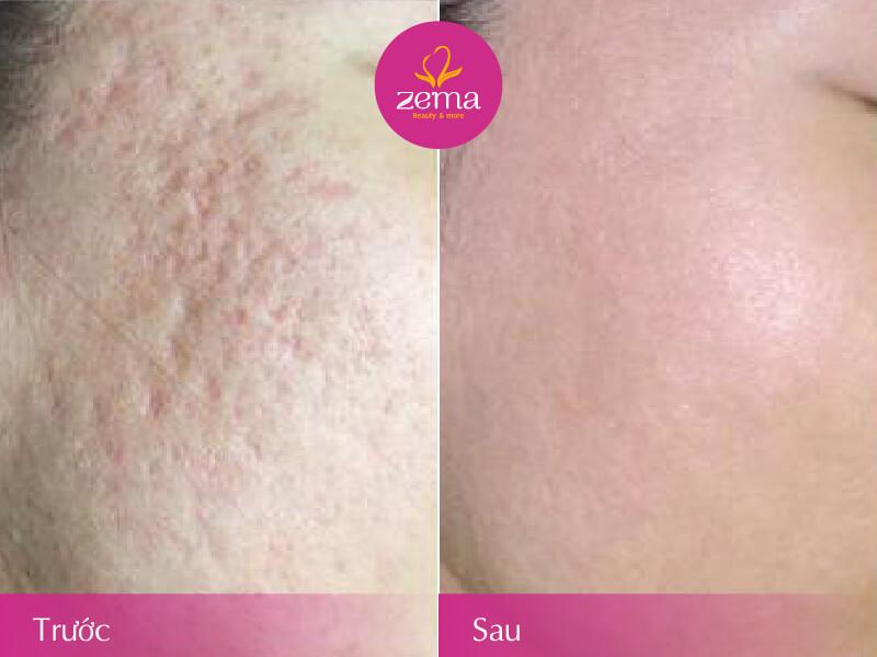 Khách hàng trước và sau khi điều trị sẹo rỗ