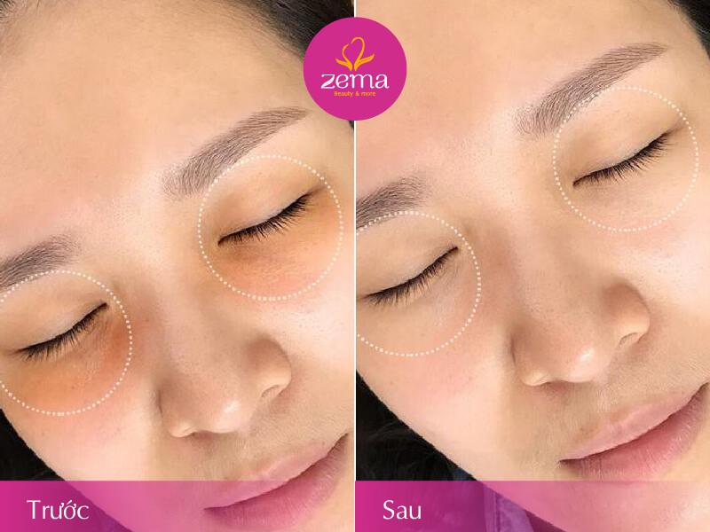 Ảnh khách hàng trước và sau khi trị thâm quầng mắt
