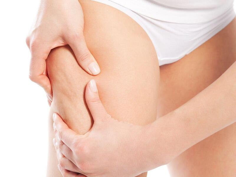 Mỡ ở vùng đùi làm bạn cảm thấy nặng nề khi di chuyển?
