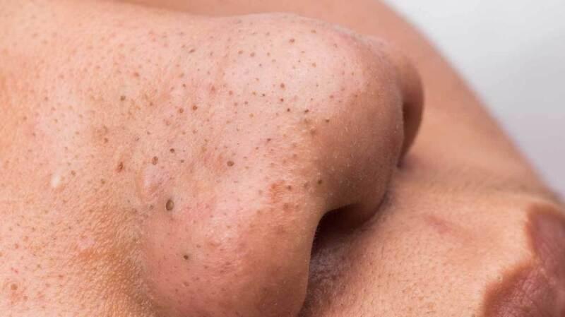 Mụn đầu đen ở phần da mũi