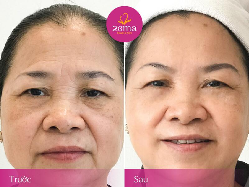 Ảnh trước và sau khi thực hiện trẻ hoá da tại Zema Việt Nam