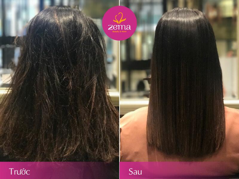Ảnh khách hàng trước và sau khi thực hiện phục hồi tóc Collagen