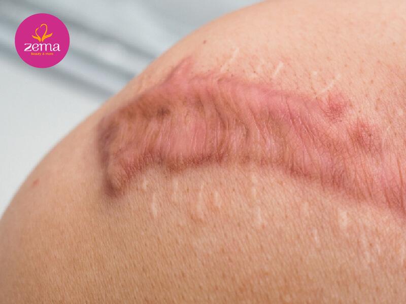 Các vết sẹo lồi có thể được điều trị bằng phương pháp laser