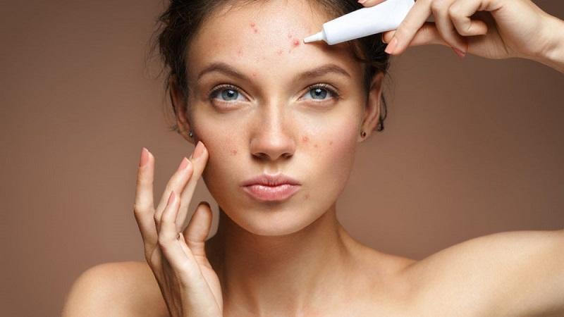 Thâm đen và thâm đỏ do mụn gây ra ảnh hưởng đến thẩm mỹ của khuôn mặt
