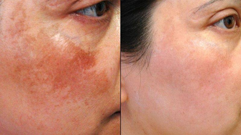 Điều trị da nám bằng laser mang lại hiệu quả cao