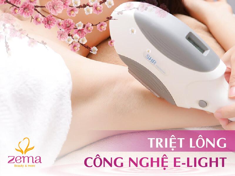 Dịch vụ triệt lông công nghệ E-Light tại Zema Việt Nam