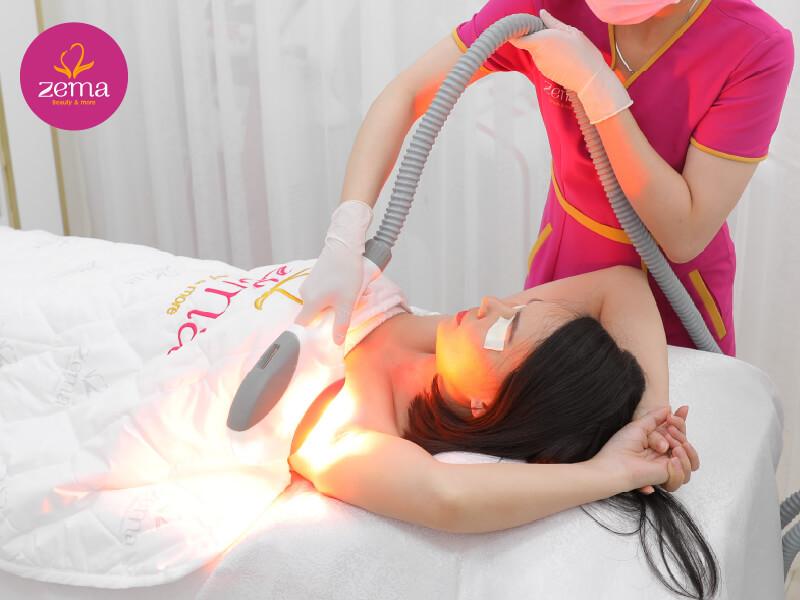 Quy trình triệt lông công nghệ E-Light đạt chuẩn tại Zema Việt Nam