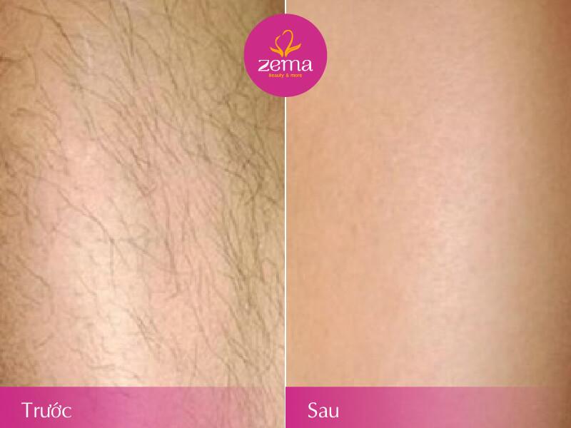 Ảnh trước và sau khi thực hiện dịch vụ triệt lông chân bằng công nghệ E-Light