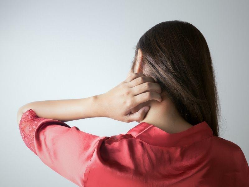 Khi bị dị ứng mề nay không dùng tay gãi ngứa