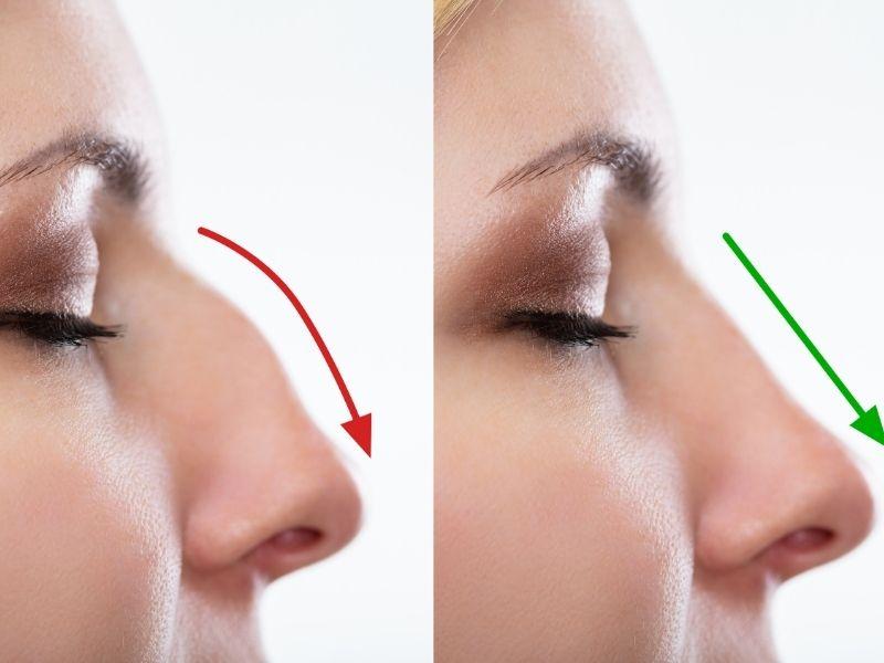 Massage theo đường sống mũi