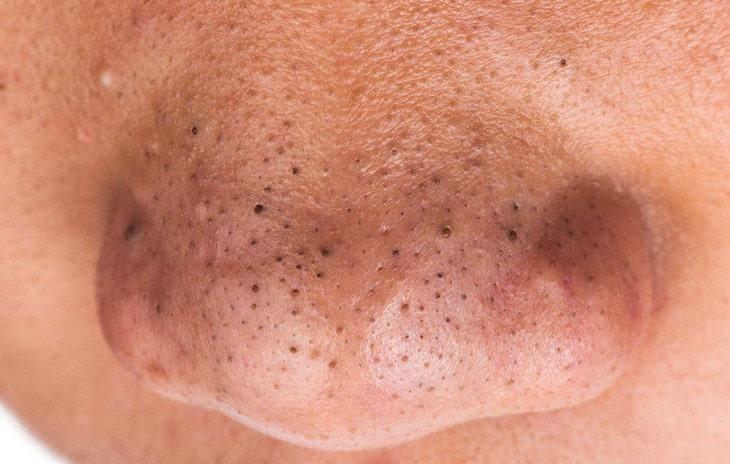 Mụn đầu đen ở mũi