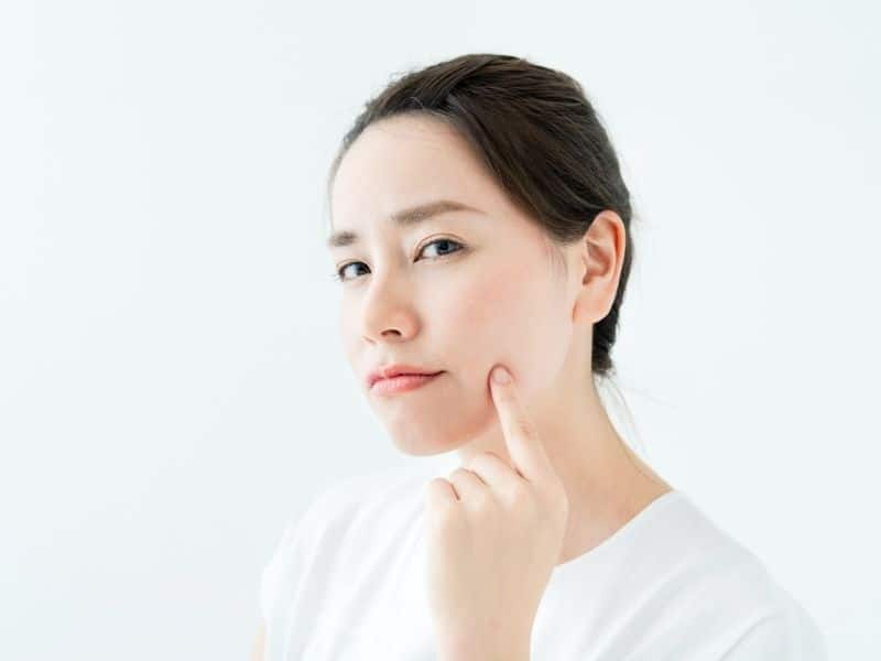 Có rất nhiều cách đơn giản để trị mụn nang