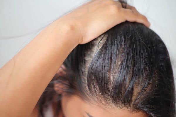Tóc bết dầu do nhiều nguyên nhân tác động đến
