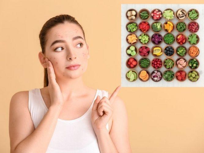Nên ăn gì trị thâm mụn?