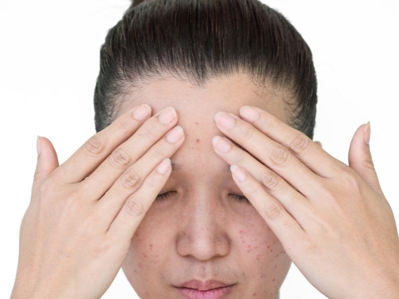 Không nên làm dụng các cách giúp mụn xẹp nhanh vì có thể khiến làn da bị tổn thương