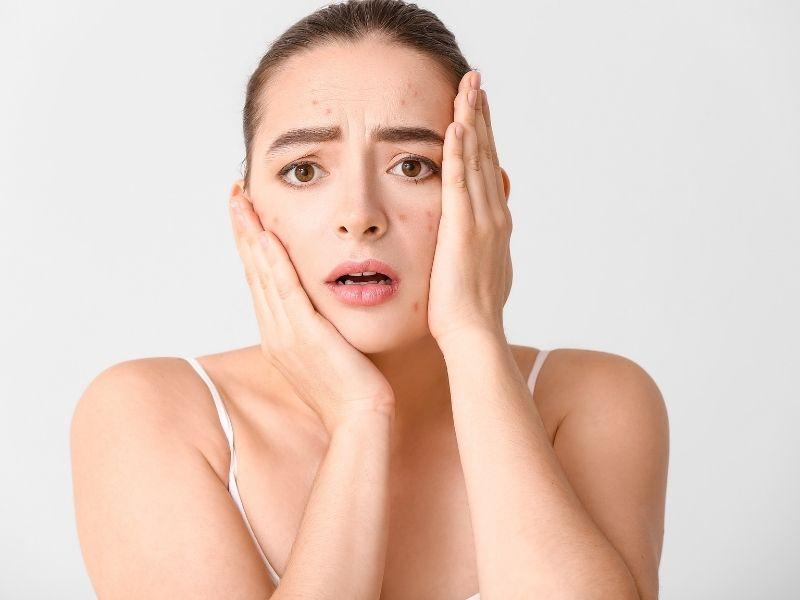 Mụn dị ứng ở mặt cũng cần được điều trị