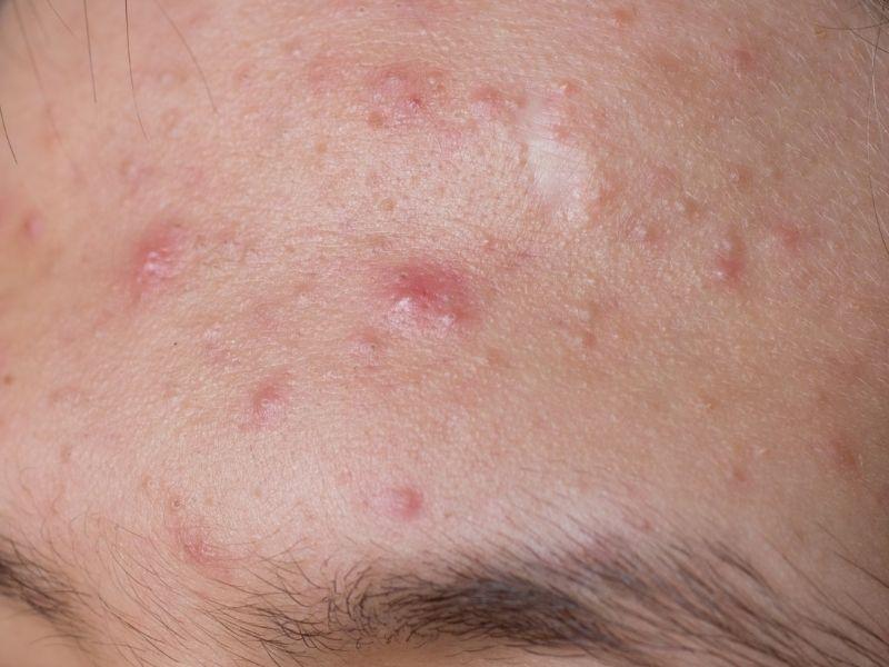 Mụn trên da có loại nên nặn có loại không nên