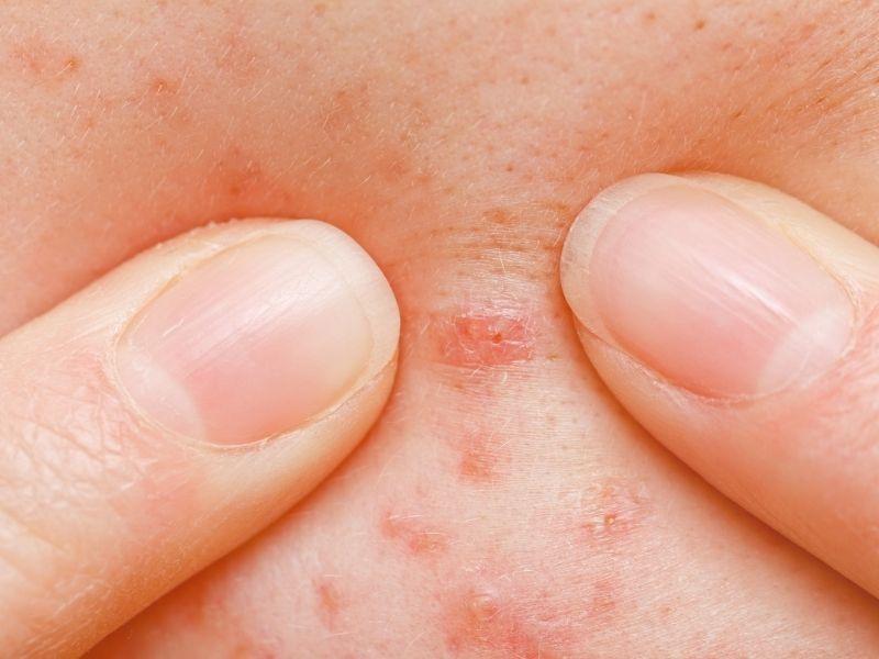 Nặn mụn bằng tay ảnh hưởng tới da rất nhiều