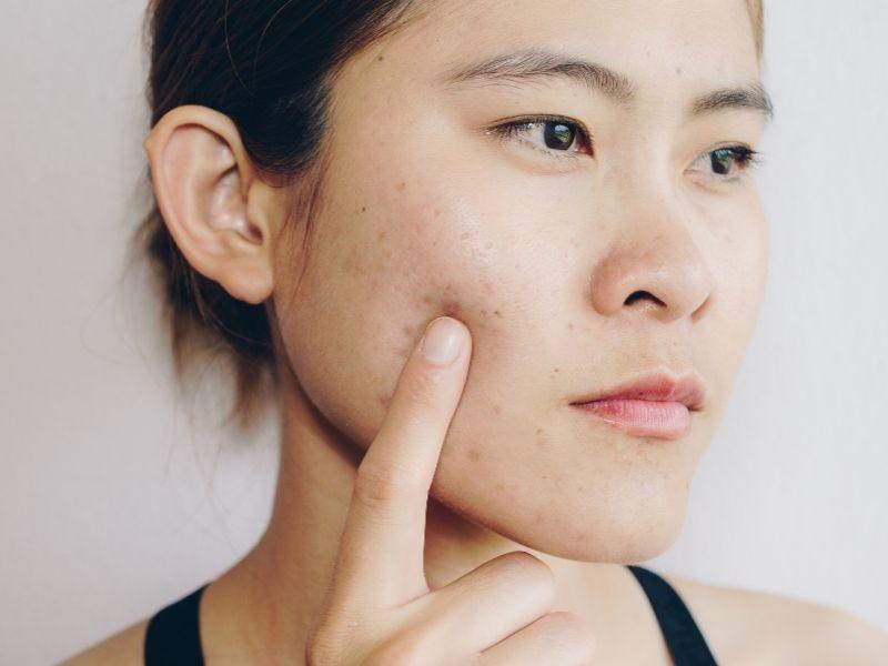 Sẹo mụn cần được điều trị sớm và đúng cách