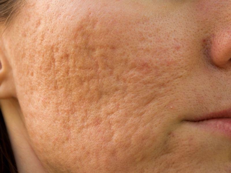 Sẹo lõm thực sự sẽ gây mất thẩm mỹ cho làn da