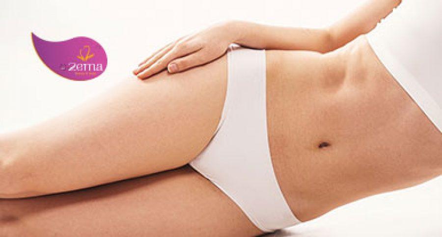 Triệt lông bikini – Sự quyến rũ khó cưỡng