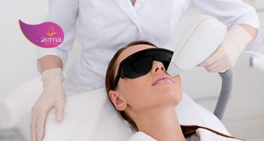 Laser trẻ hóa da – Cho làn da đẹp không tỳ vết