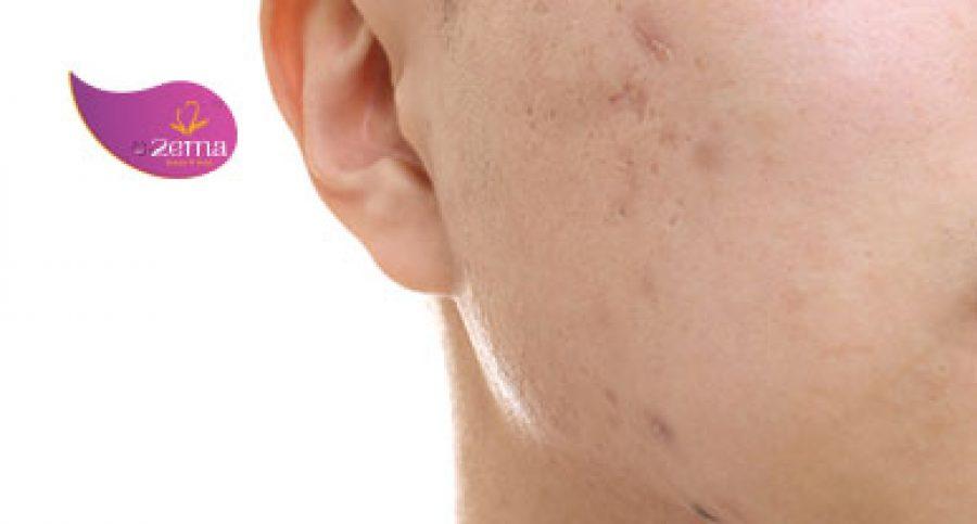 Công nghệ Laser trị sẹo rỗ – Không còn nỗi lo