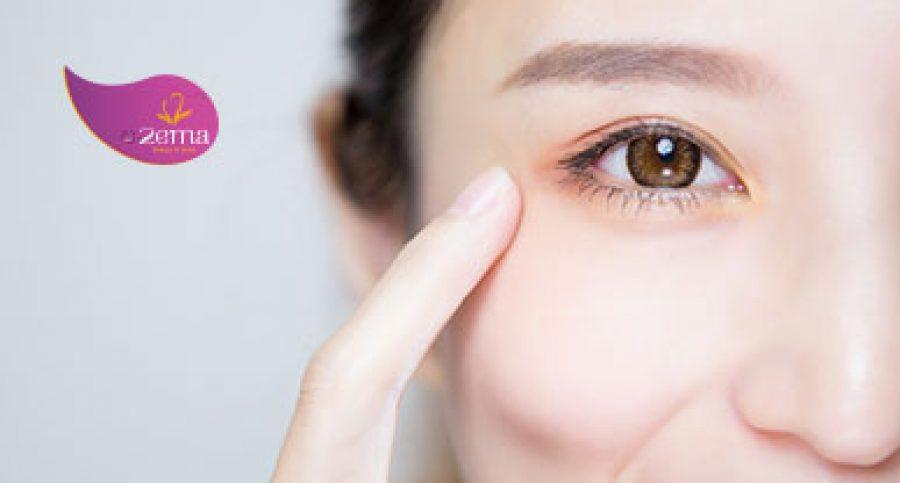 Công nghệ trị thâm quầng mắt bằng Laser