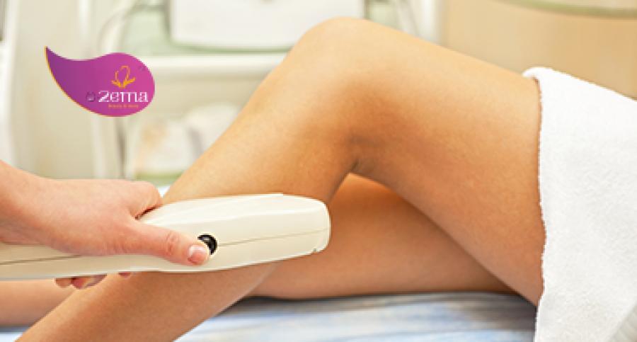 Triệt lông body – xử lý vấn đề khó nói của nữ giới